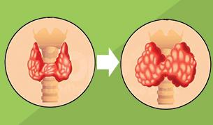 Avita Thyroid system